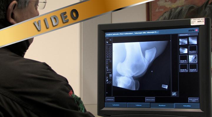 Ell Dirk Fister: röntgentutkimus